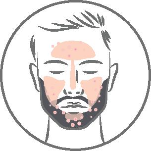Male Skin (Oily)